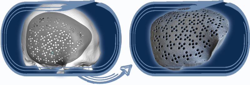 EOS DMLS technology to manufacture prototypes and prosthesis directly in titanium.