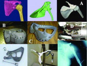 Scapula Implant Partners: CRPM, UCT